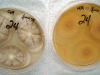 Aspergillus terreus culture