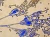 Penicillium chrysogenum spores